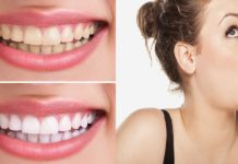Home Remedies for Bad Breath And Yellow Teeth